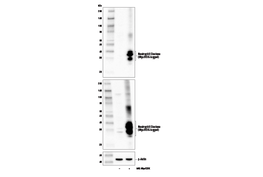 Western blot analysis of extracts from 293T cells, mock transfected (-) or transfected with a construct expressing Myc/DDK-tagged full-length human neutrophil elastase protein (hNE-Myc/DDK; +), using Neutrophil Elastase Antibody (upper), DYKDDDDK Tag Antibody #2368 (middle), and β-Actin (D6A8) Rabbit mAb #8457 (lower).