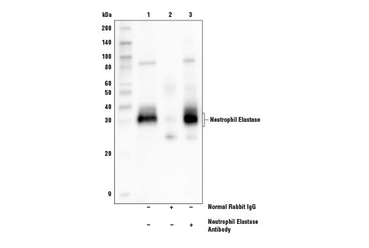Immunoprecipitation of neutrophil elastase from THP-1 cell extracts. Lane 1 is 10% input, lane 2 is Normal Rabbit IgG #2729, and lane 3 is Neutrophil Elastase Antibody. Western blot analysis was performed using Neutrophil Elastase Antibody. Mouse Anti-Rabbit IgG (Conformation Specific) (L27A9) mAb (HRP Conjugate) #5127 was used for detection to avoid cross-reactivity with IgG.