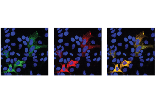 Image 8: Cas9 and Associated Proteins Antibody Sampler Kit