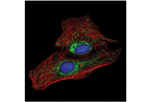 Confocal immunofluorescent analysis of HeLa cells using MFF (E5W4M) XP<sup>®</sup> Rabbit mAb (Alexa Fluor<sup>®</sup> 488 Conjugate) (green) and β-Actin (8H10D10) Mouse mAb #3700 (red). Blue pseudocolor = DRAQ5<sup>®</sup> #4084 (fluorescent DNA dye).