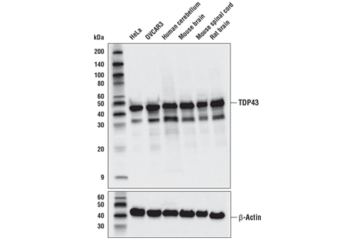Western blot analysis of extracts from various cell lines and tissues using TDP43 (D9R3L) Rabbit mAb (upper) and β-Actin (D6A8) Rabbit mAb #8457 (lower).