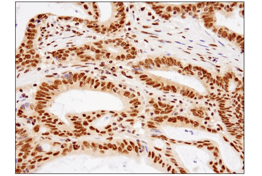 Immunohistochemical analysis of paraffin-embedded human colon carcinoma using TDP43 (D9R3L) Rabbit mAb.