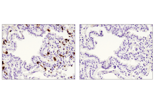 Immunohistochemical analysis of paraffin-embedded mouse lung using CD45 (D3F8Q) Rabbit mAb in the presence of control peptide (left) or antigen-specific peptide (right).