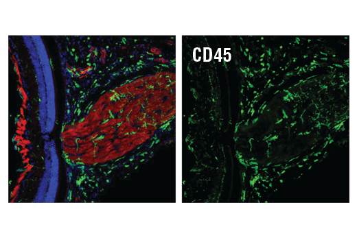 Confocal immunofluorescent analysis of wild-type mouse retina and optic nerve labeled with CD45 (D3F8Q) Rabbit mAb #70257 (green) and Neurofilament-L (DA2) Mouse mAb #2835 (red). Sections were coverslipped with ProLong® Gold Antifade Reagent with DAPI #8961 (blue).