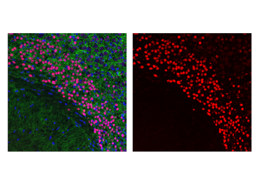 Confocal immunofluorescent analysis of postnatal day 5 (P5) mouse cortex using TBR1 (D6C6X) Rabbit mAb (Alexa Fluor<sup>®</sup> 594 Conjugate) (red). Actin filaments were labeled with DyLight™ 488 Phalloidin #12935 (green). Blue pseudocolor = DRAQ5<sup>®</sup> #4084 (fluorescent DNA dye).