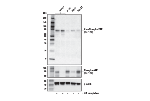 Western blot analysis of extracts from various cell lines, untreated (-) or treated with lambda and calf-intestinal phosphatase (λ/CIP; +), using Non-phospho (Active) YAP (Ser127) (E6U8Z) Rabbit mAb (upper), Phospho-YAP (Ser127) (D9W2I) Rabbit mAb #13008 (middle), and β-Actin (D6A8) Rabbit mAb #8457 (lower).