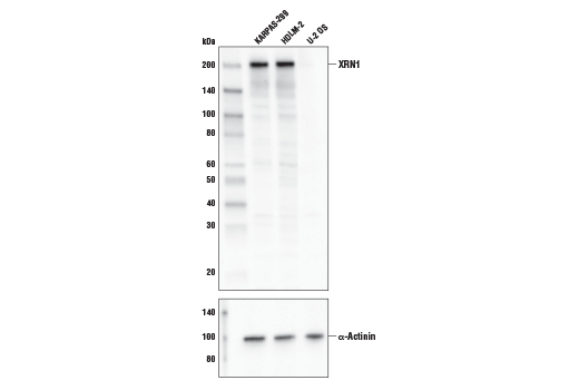 Western blot analysis of extracts from KARPAS-299, HDLM-2, and U-2 OS cell lines using XRN1 Antibody (upper) and α-Actinin (D6F6) XP<sup>®</sup> Rabbit mAb #6487 (lower). KARPAS cell line source: Dr. Abraham Karpas at the University of Cambridge.