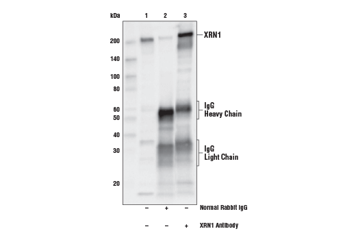 Polyclonal Antibody Immunoprecipitation Rrna Catabolic Process