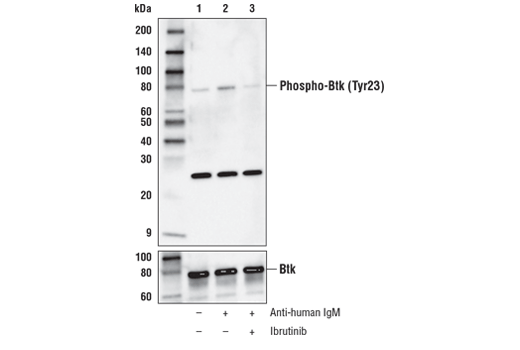 Western blot analysis of extracts from Daudi cells, serum-starved overnight, then vehicle-treated (lane 1), treated with anti-human IgM (12 μg/ml, 10 min; lane 2), or pre-treated with Ibrutinib #16483 (1 μM, 60 min) prior to anti-IgM treatment (lane 3), using Phospho-Btk (Tyr23) (D1D2Z) Rabbit mAb (upper) or Btk (D6H5) Rabbit mAb #8547 (lower).