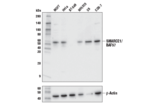 Western blot analysis of extracts from various cell lines using SMARCE1/BAF57 (E6H5J) Rabbit mAb (upper) and β-Actin (D6A8) Rabbit mAb #8457 (lower). BT-549 is a breast ductal carcinoma cell line that lacks expression of SMARCE1/BAF57.