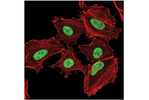 Confocal immunofluorescent analysis of HeLa cells using YY1 (D5D9Z) Rabbit mAb (green). Actin filaments were labeled with DyLight™ 554 Phalloidin #13054 (red).