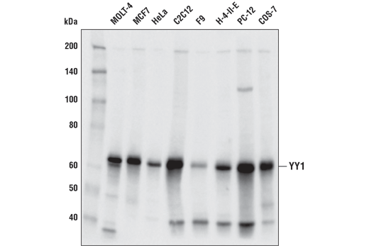 Western blot analysis of extracts from various cell lines using YY1 (D5D9Z) Rabbit mAb.