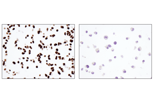 Immunohistochemical analysis of paraffin-embedded SH-SY5Y cell pellet (left, positive) or MIA PaCa-2 cell pellet (right, negative) using ARID1B/BAF250B (E1U7D) Rabbit mAb.