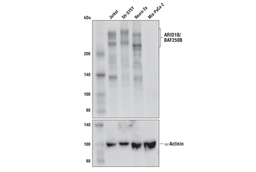 Western blot analysis of extracts from various cell lines using ARID1B/BAF250B (E1U7D) Rabbit mAb (upper) and α-Actinin (D6F6) Rabbit mAb #6487 (lower). MIA PaCa-2 cells do not express ARID1B/BAF250B protein.