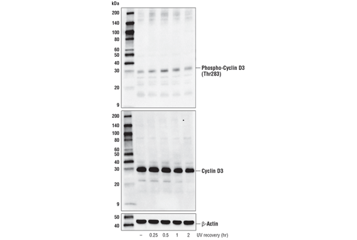Western blot analysis of extacts from ACHN cells, untreated or treated with UV light (100 mJ/cm<sup>2</sup>) with recovery times as indicated, using Phospho-Cyclin D3 (E1V6W) Rabbit mAb (upper), total Cyclin D3 (DCS22) Mouse mAb #2936 (middle), or β-Actin (D6A8) Rabbit mAb #8457 (lower).