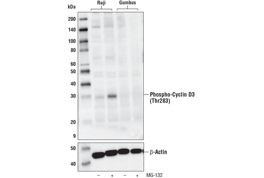 Western blot analysis of extracts from Raji or Gumbus cell lines, untreated (-) or treated with MG-132 #2194 (10 μM, overnight; +), using Phospho-Cyclin D3 (Thr283) (E1V6W) Rabbit mAb or β-Actin (D6A8) Rabbit mAb #8457 (lower). Gumbus cells have a genetic mutation in cyclin D3 at Thr283.