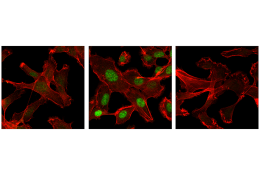 Confocal immunofluorescent analysis of serum-starved HT-1080 cells, untreated (left), treated with Human Transforming Growth Factor β3 (hTGF-β3) #8425 (100 ng/mL, 20 min; center), or treated with hTGF-β3 and post-processed with λ-phosphatase (right), using Phospho-Smad2 (Ser465/467) (E8F3R) Rabbit mAb (green). Actin filaments were labeled with DyLight™ 554 Phalloidin #13054 (red).