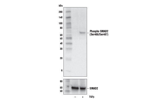 Western blot analysis of extracts from HaCaT cells, untreated (-) or treated with Human Transforming Growth Factor β3 (hTGF-β3)#8425 (100ng/ml, 30mins) (+), using Phospho SMAD2 (Ser465/Ser467) (E8F3R) Rabbit mAb (upper) and total Smad2 (D43B4) XP<sup>®</sup> Rabbit mAb, #5339 (lower).
