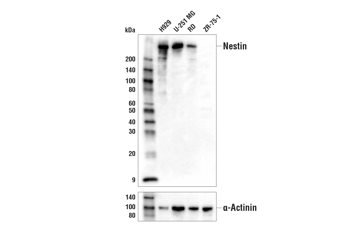 Western blot analysis of extracts from various cell lines using Nestin (10C2) Mouse mAb (upper) or α-Actinin (D6F6) XP<sup>®</sup> Rabbit mAb #6487 (lower).
