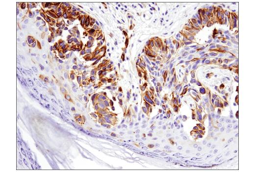 Immunohistochemical analysis of paraffin-embedded human melanoma using Nestin (10C2) Mouse mAb.