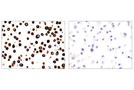 Immunohistochemical analysis of paraffin-embedded H929 cell pellet (left, positive) or ZR-75-1 cell pellet (right, negative) using Nestin (10C2) Mouse mAb.