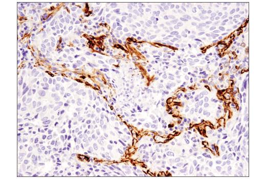 Immunohistochemical analysis of paraffin-embedded human lung adenocarcinoma using Nestin (10C2) Mouse mAb.