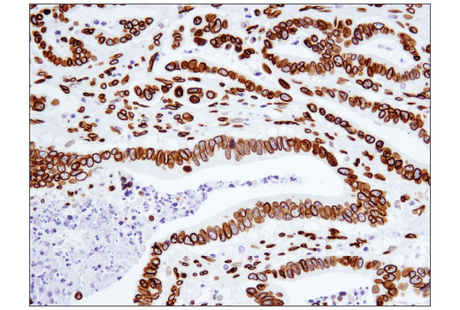 Immunohistochemical analysis of paraffin-embedded human colon carcinoma using Lamin A (133A2) Mouse mAb.