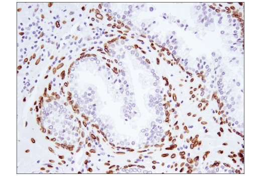Immunohistochemical analysis of paraffin-embedded human prostate carcinoma using Lamin A (133A2) Mouse mAb.