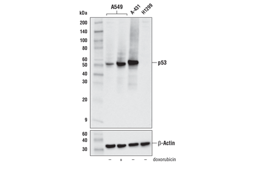 Western blot analysis of A549 cells, vehicle treated (-) or treated with doxorubicin #5927 (0.5 μM, 24 hours, +), A-431 cells (p53-positive) and H1299 cells (p53-negative) using p53 (DO-1) Mouse mAb (upper) or β-Actin (D6A8) Rabbit mAb #8457 (lower).