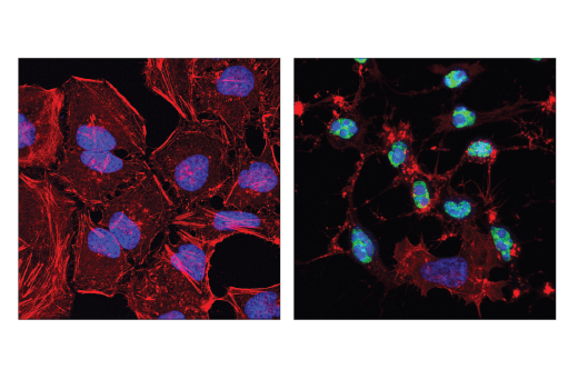 Monoclonal Antibody - Cleaved-PARP (Asp214) (E2T4K) Mouse mAb, UniProt ID P09874, Entrez ID 142 #32563, Parp