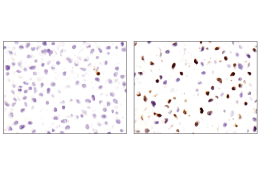 Immunohistochemical analysis of paraffin-embedded HeLa cell pellet, untreated (left) or treated with Staurosporine #9953 (right), using Cleaved-PARP (Asp214) (E2T4K) Mouse mAb.