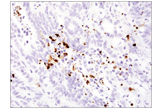 Immunohistochemical analysis of paraffin-embedded human colon carcinoma using Cleaved-PARP (Asp214) (E2T4K) Mouse mAb.