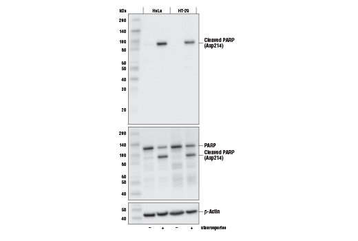 Western blot analysis of extracts from serum starved HeLa or HT-29 cells, untreated (-) or treated with Staurosporine #9953 (1 μM; +), using Cleaved PARP (Asp214) (E2T4K) Mouse mAb (upper), total PARP (46D11) Rabbit mAb #9532 (middle), or β-Actin (D6A8) Rabbit mAb #8457 (lower).