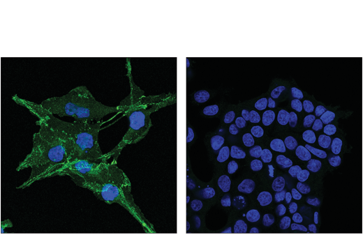 Confocal immunofluorescent analysis of A172 (left, positive) and MCF7 (right, negative) cells using N-Cadherin (D4R1H) XP<sup>®</sup> Rabbit mAb (Alexa Fluor<sup>®</sup> 488 Conjugate) (green). Blue = DAPI #4083 (fluorescent DNA dye).