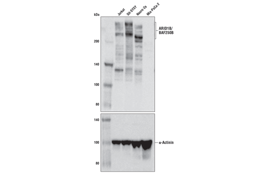 Western blot analysis of extracts from various cell lines using ARID1B/BAF250B (E9J4T) Rabbit mAb (upper) and α-Actinin (D6F6) Rabbit mAb #6487 (lower). MIA PaCa-2 cells do not express ARID1B/BAF250B protein.