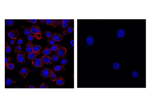 Monoclonal Antibody - PD-1 (D7D5W) XP® Rabbit mAb (Mouse Specific) (Alexa Fluor® 555 Conjugate), UniProt ID Q02242, Entrez ID 18566 #76733