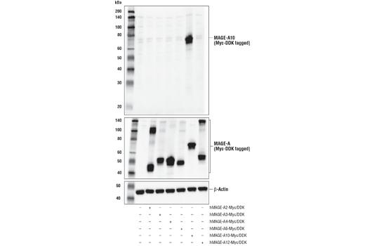 Polyclonal Antibody - MAGE-A10 Antibody - Immunoprecipitation, Western Blotting, UniProt ID P43363, Entrez ID 4109 #68978