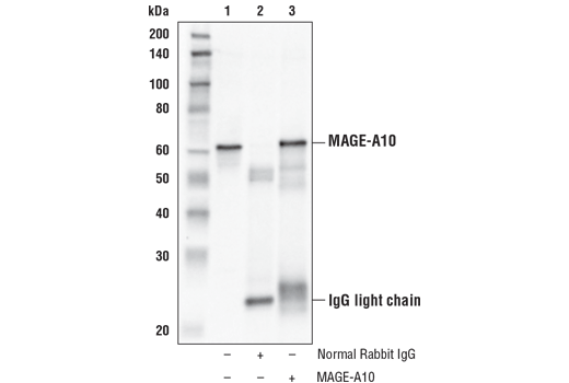 Immunoprecipitation Image 1: MAGE-A10 Antibody
