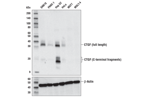 Western blot analysis of extracts from various cell lines using CTGF (E2W5M) Rabbit mAb (upper) and β-Actin (D6A8) Rabbit mAb #8457 (lower).