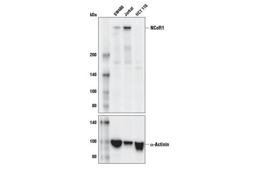Monoclonal Antibody Immunohistochemistry Paraffin Transcription Corepressor Activity