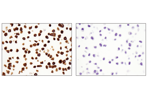 Immunohistochemical analysis of paraffin-embedded KARPAS-299 cell pellet (left, positive) or HeLa cell pellet (right, negative) using TNFRSF8/CD30 (E4L4I) XP<sup>®</sup> Rabbit mAb.