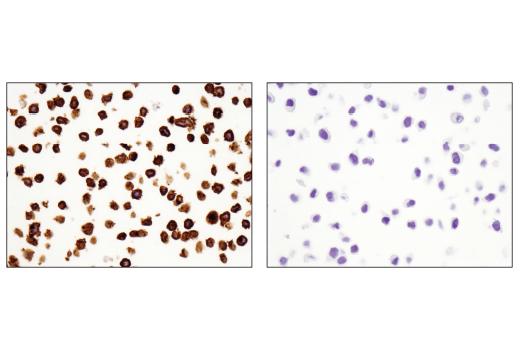 Monoclonal Antibody - TNFRSF8/CD30 (E4L4I) XP® Rabbit mAb, UniProt ID P28908, Entrez ID 943 #54535 - Primary Antibodies