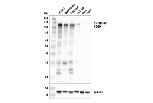 Western Blotting Image 1: TNFRSF8/CD30 (E4L4I) XP® Rabbit mAb