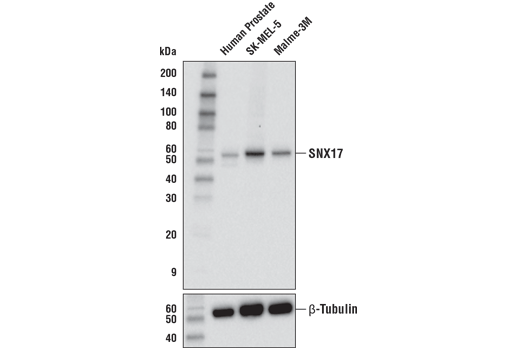Western blot analysis of extracts from human prostate tissue and SK-MEL-5 and Malme-3M cells using SNX17 (E8F8Y) Rabbit mAb (upper) and β-Tubulin (D2N5G) Rabbit mAb #15115 (lower).