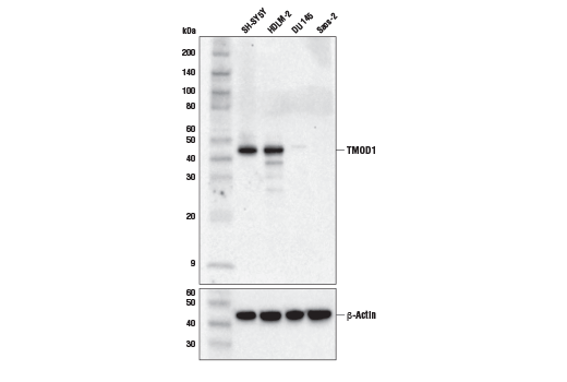 Western blot analysis of extracts from various cell lines using TMOD1 (E7E3A) XP<sup>®</sup> Rabbit mAb (upper) and β-Actin (D6A8) Rabbit mAb #8457 (lower).