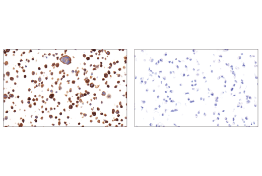 Immunohistochemical analysis of paraffin-embedded HDLM-2 cell pellet (left, positive) or DU 145 cell pellet (right, negative) using TMOD1 (E7E3A) XP<sup>®</sup> Rabbit mAb.