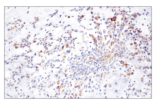 Immunohistochemical analysis of paraffin-embedded human triple negative breast carcinoma using TMOD1 (E7E3A) XP<sup>®</sup> Rabbit mAb.