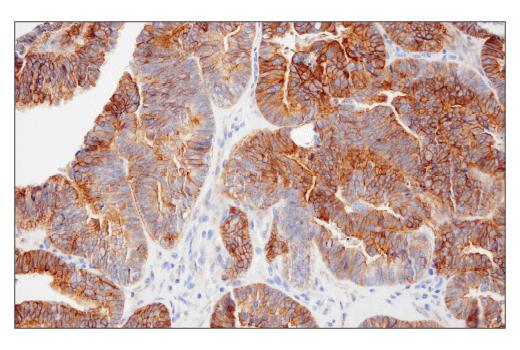 Immunohistochemical analysis of paraffin-embedded human ovarian serous carcinoma using TMOD1 (E7E3A) XP<sup>®</sup> Rabbit mAb.
