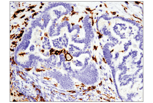 Immunohistochemical analysis of paraffin-embedded human ovarian serous carcinoma using CD16 (D1N9L) Rabbit mAb performed on the Leica<sup>®</sup> BOND™ Rx.