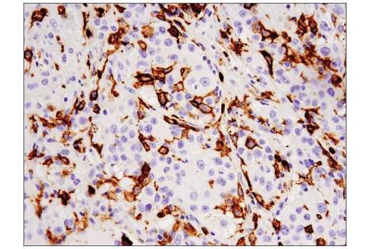 Immunohistochemical analysis of paraffin-embedded human lung adenocarcinoma using CD16 (D1N9L) Rabbit mAb.